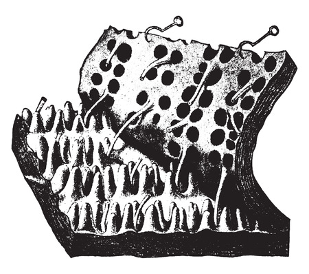 strip structure: Skin with epidermis stripped off, vintage engraved illustration.