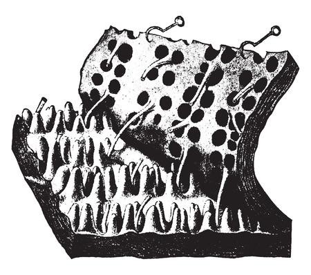 Skin with epidermis stripped off, vintage engraved illustration.