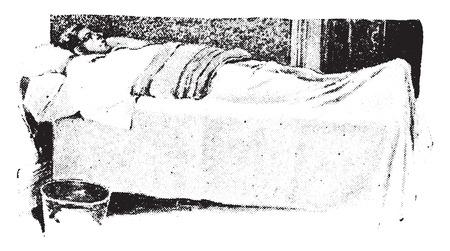 flannel: Fomentation, wet flannel covered the dry one, vintage engraved illustration. Illustration