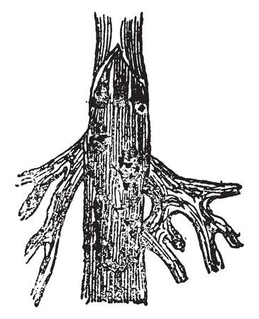 Open vein, vintage engraved illustration. Иллюстрация