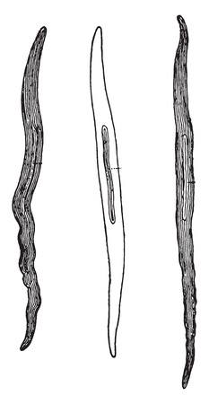 Muscular fiber cells from human arteries, magnified 350 times, vintage engraved illustration.