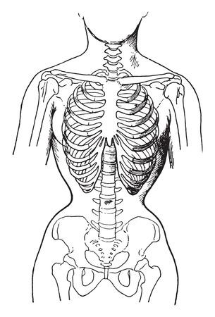 コルセット、常習的タイトなコルセット、ビンテージの刻まれた図身に着けている女性の骨の状態を示すによって変形します。  イラスト・ベクター素材