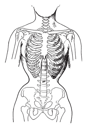 Deformed by the corsets, showing condition of bones in women who habitually wear tight corsets, vintage engraved illustration. Stock Illustratie