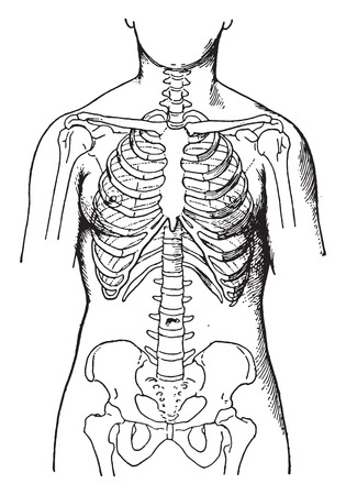 pelvic: Deformed by the corsets, showing condition of bones in women who habitually wear tight corsets, vintage engraved illustration. Illustration