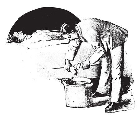 burning: Fomentation, wringing second cloth from boiling water without burning hands, vintage engraved illustration.