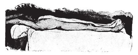 partly: Wet sheet pack, patient partly covered, vintage engraved illustration. Illustration