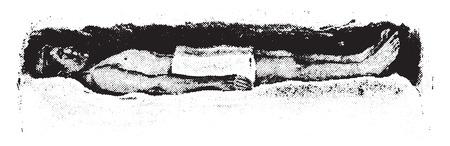 Cold hip pack, blankets in position, vintage engraved illustration. Ilustração
