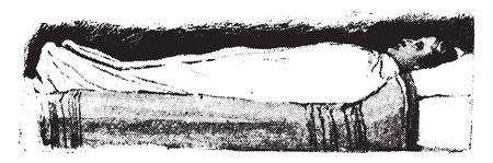 patient bed: Wet sheet pack, sheet in position, vintage engraved illustration. Illustration