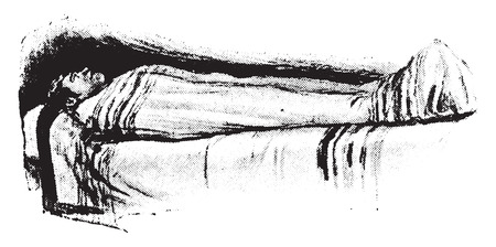 partly: Blanket pack, patient partly wrapped, vintage engraved illustration.