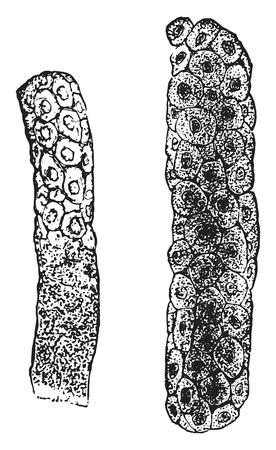 Epithelial casts, vintage engraved illustration.