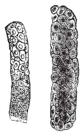 epithelial: Epithelial casts, vintage engraved illustration.