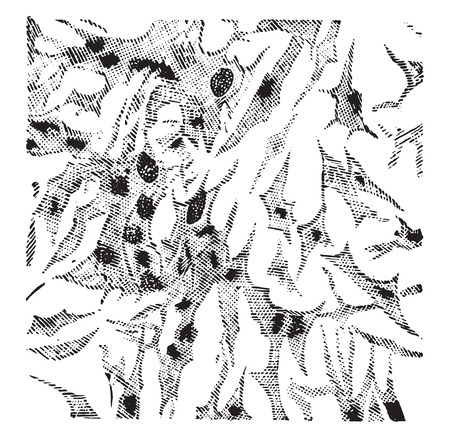 connective tissue: Myxoma, vintage engraved illustration. Illustration