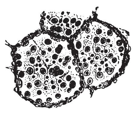 alveolos: Dos alvéolos y una parte del tercero de pulmón en la neumonía catarral, ilustración de la vendimia grabado.