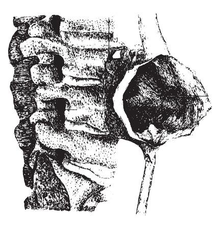 vertebra: Symmetric aneurysm of the abdominal aorta, vintage engraved illustration.