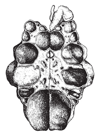 Kidney, congenital cystic disease, laid open, vintage engraved illustration. Illustration