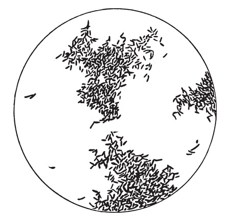 陽性反応、ヴィンテージには、図が刻まれています。