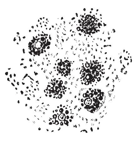Fatty degeneration of the liver cells, vintage engraved illustration. Illustration