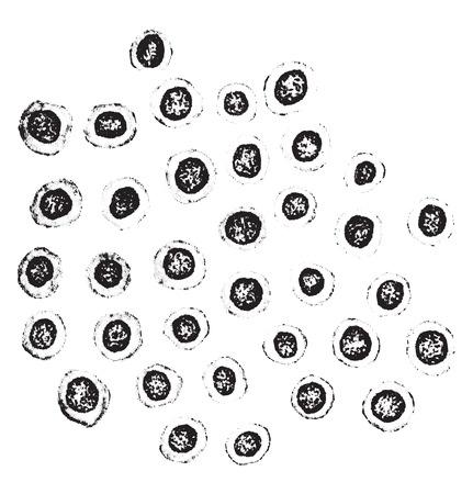 meninges: Lymphoid cells from meninges in a case of tuberculous meningitis, vintage engraved illustration. Illustration
