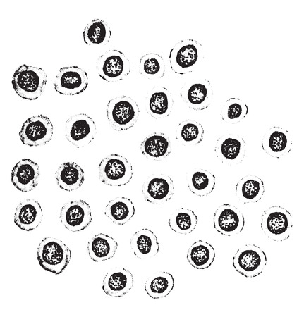 case history: Lymphoid cells from meninges in a case of tuberculous meningitis, vintage engraved illustration. Illustration