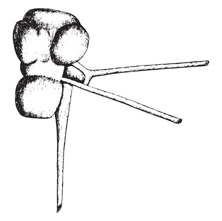 fetal: Persistent fetal kidney due to anastomoses between renal artery and vein, vintage engraved illustration. Illustration