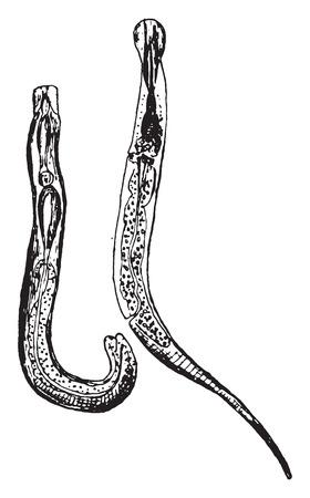 Oxyuris vermicularis, Vintage-Gravur.