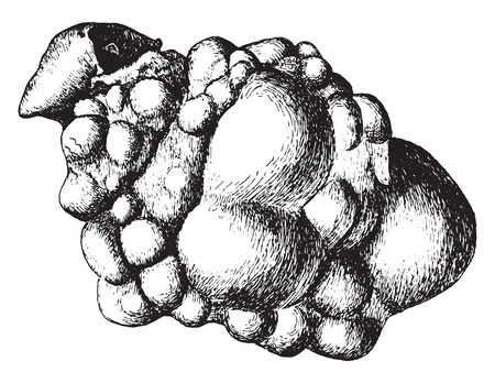 cystic: Kidney, congenital cystic disease, laid open, vintage engraved illustration. Illustration