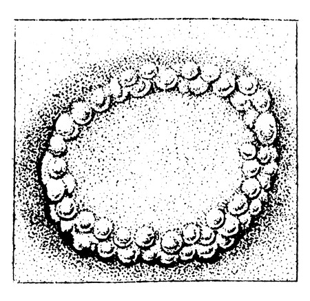 herpes: Herpes coronoid, vintage engraved illustration.