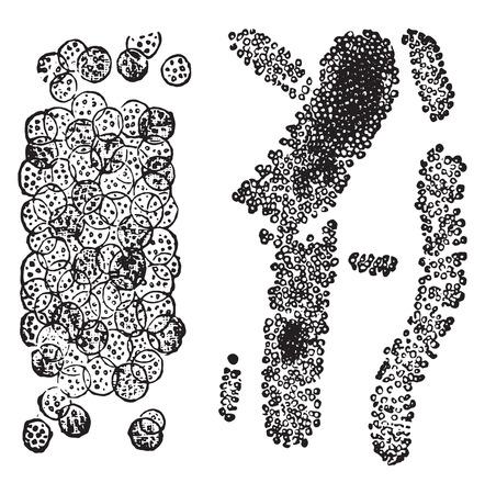 purely: Cast made up almost purely of leukocytes, cast composed of acid sodic urate, vintage engraved illustration. Illustration