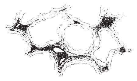 inhalacion: Secci�n del pulm�n, neumoconiosis, cosecha ilustraci�n grabada. Vectores