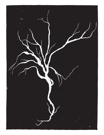 Fibrineus cast van de bronchiën, geval van croupous longontsteking, vintage gegraveerde illustratie.