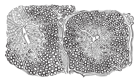 periphery: Fatty infiltration of the liver, vintage engraved illustration. Illustration