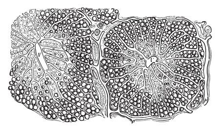 Fatty infiltration of the liver, vintage engraved illustration. Illustration