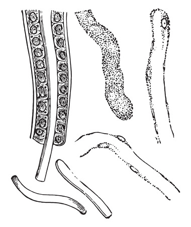 epithelium: Illustrating the formation of casts, vintage engraved illustration.