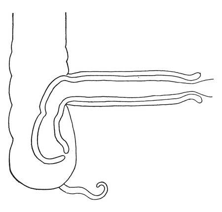 Intussusception diagram intended to show the relation of the several parts, vintage engraved illustration.