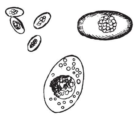 higado humano: Coccidium oviforme del h�gado humano, ilustraci�n de la vendimia grabado.