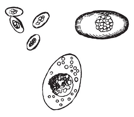 liver cells: Coccidium oviforme from the human liver, vintage engraved illustration.