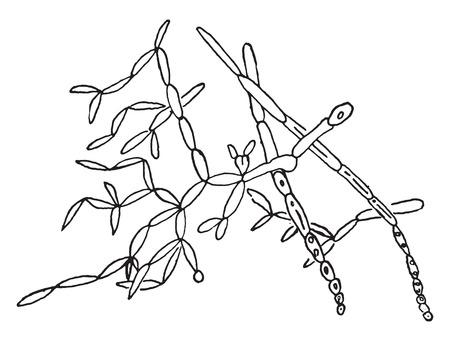 thrush: Saccharomycetes albicans (thrush fungus), vintage engraved illustration.