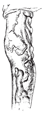 ulceration: Varicose veins of the leg, vintage engraved illustration.