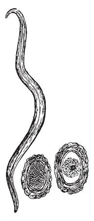 ascaris: Ascaris lumbricoides and eggs, vintage engraved illustration.