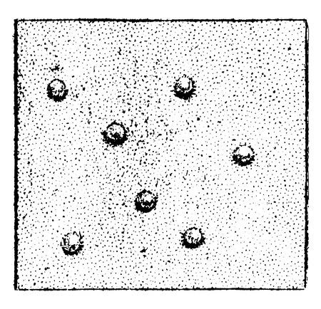 acne: Acne, vintage engraved illustration. Illustration