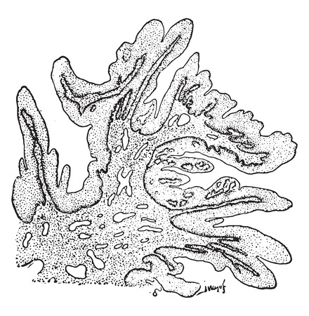 Papilloma with tendency toward villous formation, vintage engraved illustration.