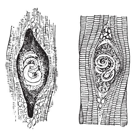 encapsulated: Trichina spiralis, vintage engraved illustration. Illustration