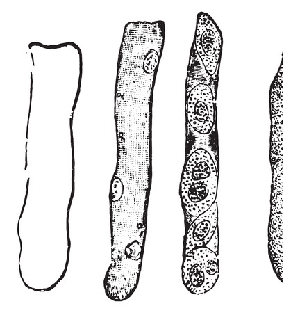 Hyaline cast, vintage engraved illustration. Ilustração