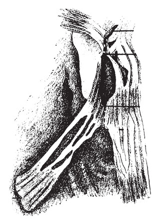orifice: Narrowed mitral orifice showing results of adhesions with considerable fibroid thickening, vintage engraved illustration.