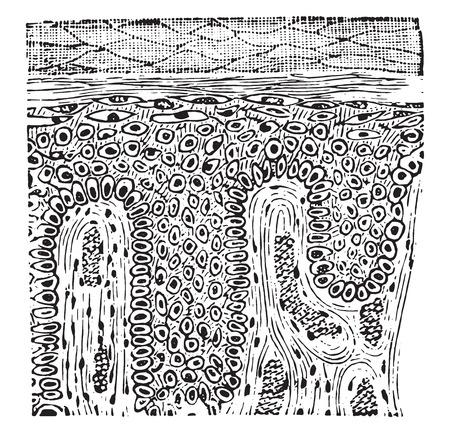 squamous: Squamous epithelioma, vintage engraved illustration.