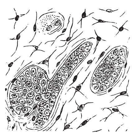 stellate: Grandular carcinoma in which the stroma has converted into mucoid tissue, vintage engraved illustration.