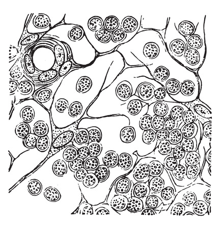 Round cell sarcoma of a lymphatic gland, vintage engraved illustration.
