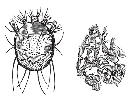 epidermis: A-Acarus scabiei, B-Portion of epidermis, showing the burrows with their contained eggs, vintage engraved illustration. Illustration