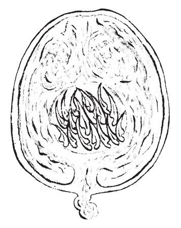 pedicle: Echinococcus, vintage engraved illustration. Illustration