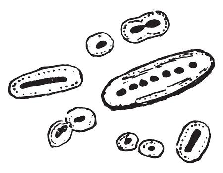 coccus: The diplococcus of pneumonia, vintage engraved illustration.